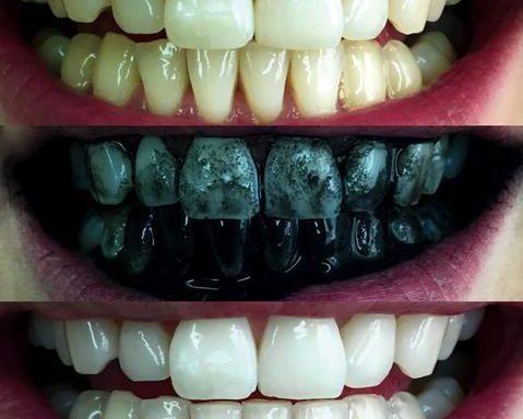charcoal teeth whitener